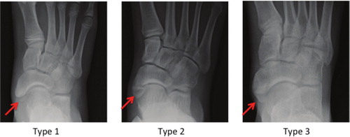 A Retrospective Study On Factors Predictive Of Operative Intervention In Symptomatic Accessory Navicular Journal Of Children S Orthopaedics 17 endoscopic synchondrosis fusion has been reported to treat symptomatic accessory navicular synchondrosis disruption with. symptomatic accessory navicular