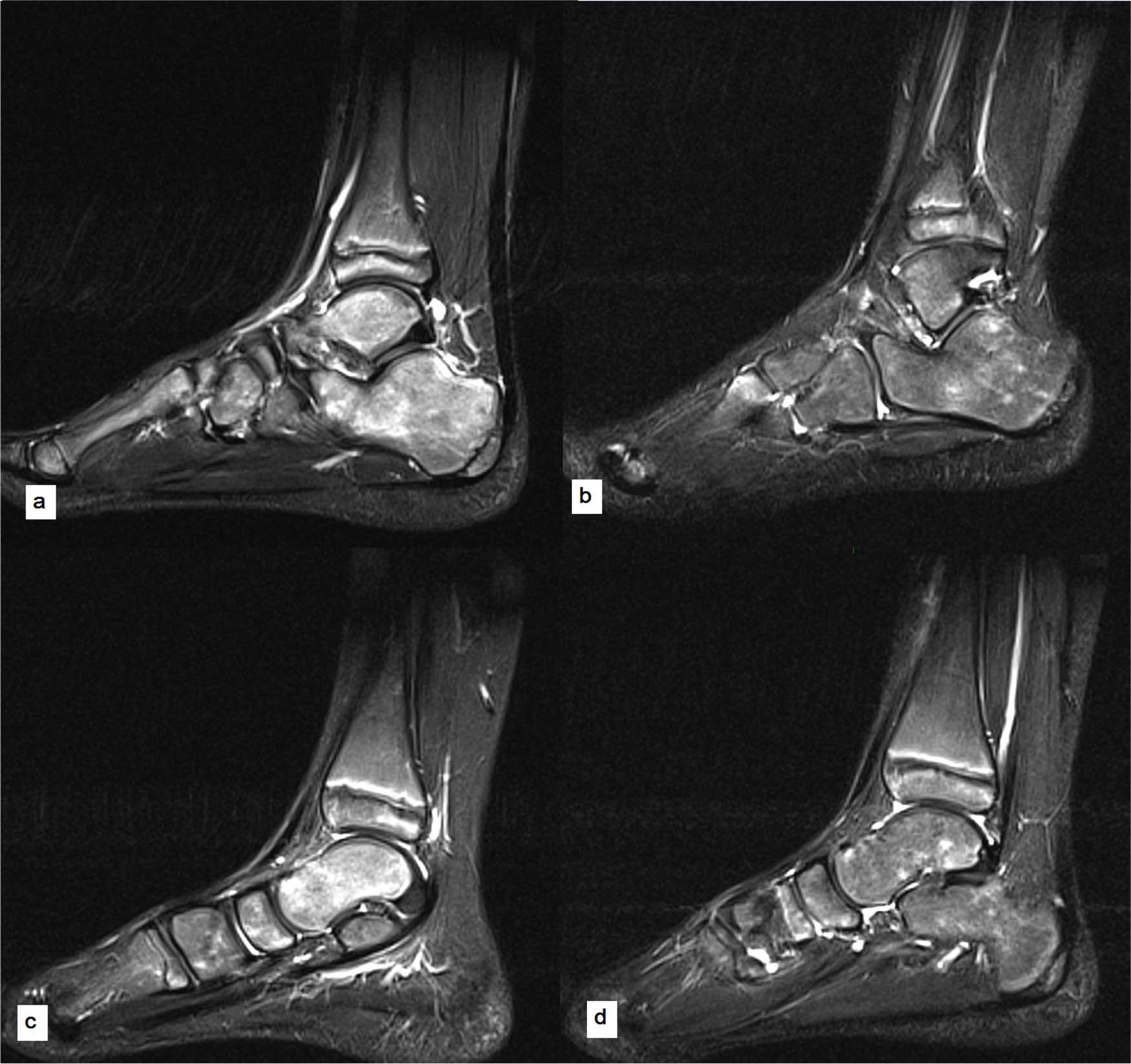 Bone Marrow Oedema Syndrome Of The Foot And Ankle In A Paediatric Population A Retrospective Case Series With Serial Mri Evaluation Journal Of Children S Orthopaedics Symphysial joints are where the bones are united by a layer of fibrocartilage. bone marrow oedema syndrome of the foot